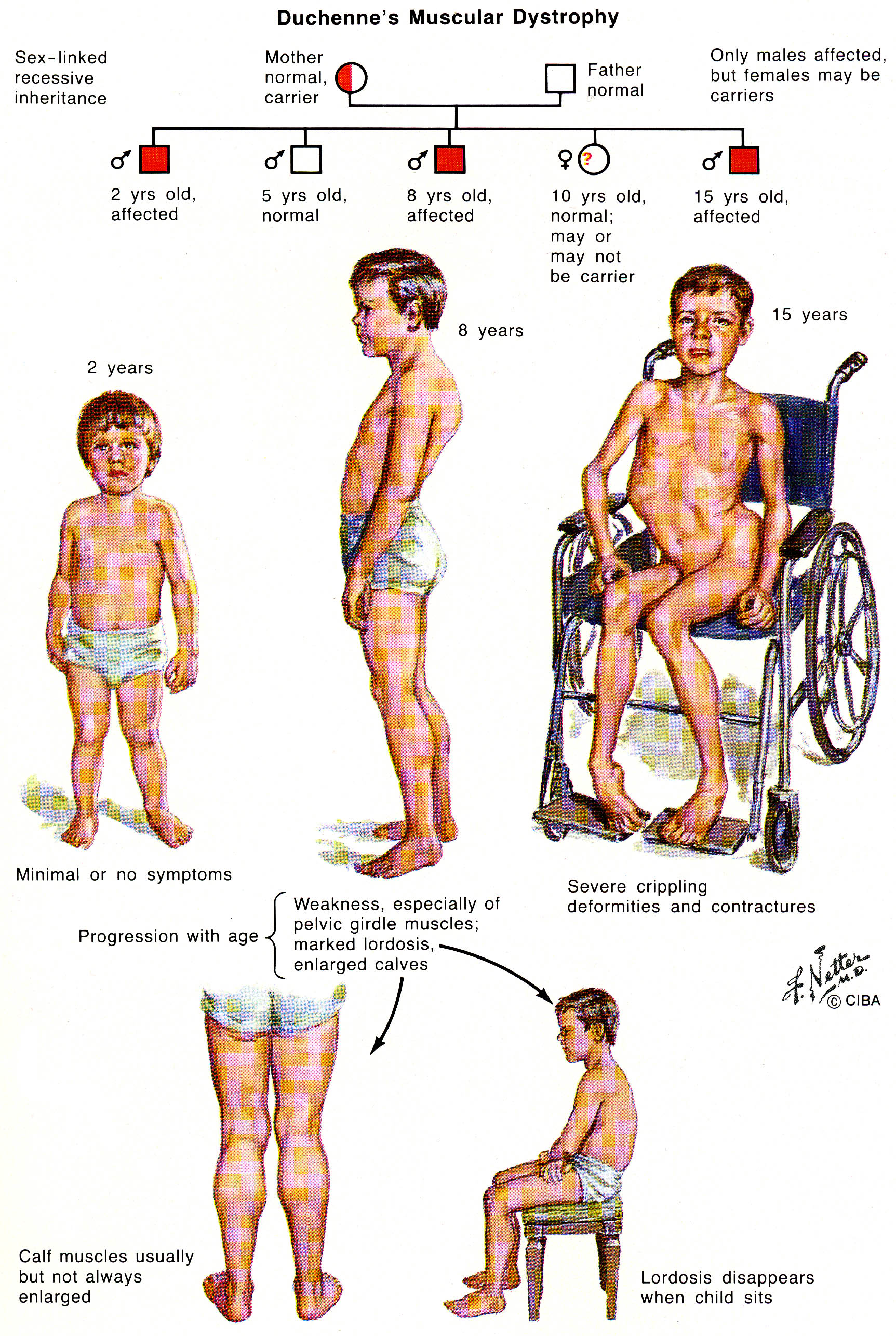 low incidence disabilities [licensed for non-commercial use only